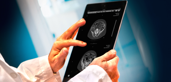 How Do I View Medical Images on My iPad or iPhone?